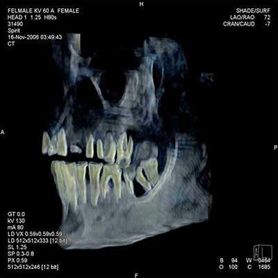 Dentadura de Hatshepsut