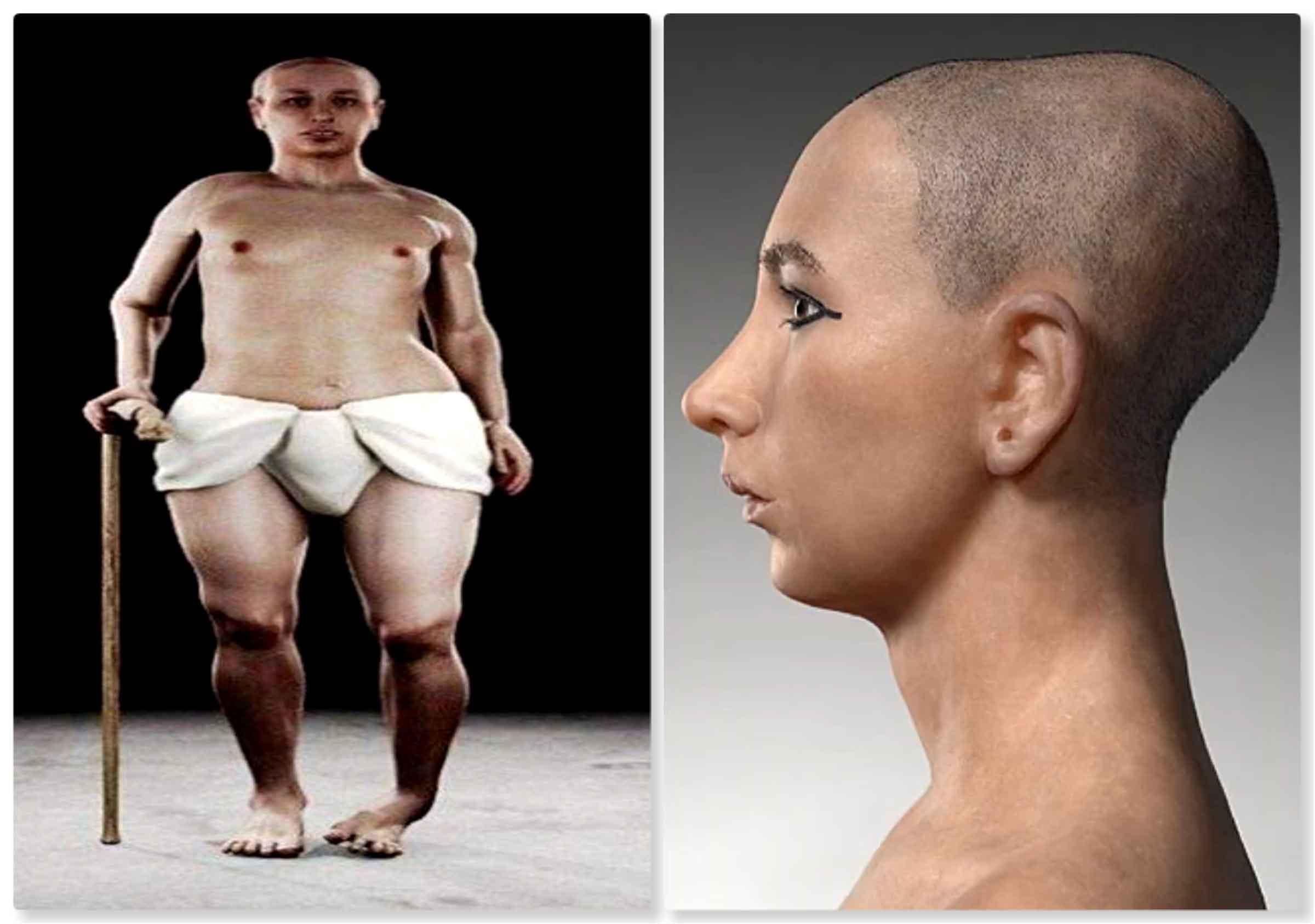Físico de Tutankamón